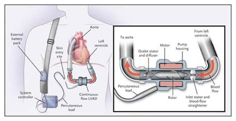Left Ventricular Assist Device (LVAD) | Stanford Health Care Lvad Clinic