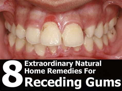 8 home remedies for receding gums randolph s world