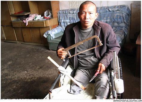 Gergaji Tulang Lelaki Ini Potong Kaki Sendiri Kerana Penyakit Aneh Zamrispoon