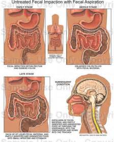 fecal impaction causes symptoms treatment fecal impaction