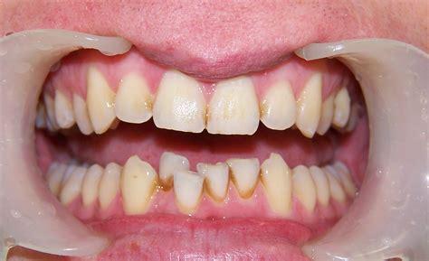straight teeth  wedding   month smiles dr nick