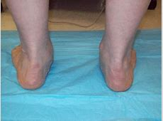 Shoes, Sitting, and Lower Body Dysfunctions – Steven Low Foot Arch Muscles