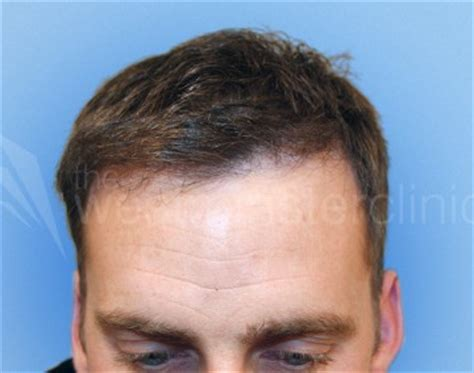 temple hair transplantation temple hair transplant