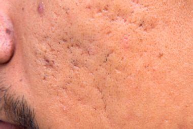 how to get rid of 5 common types of acne scars reader s