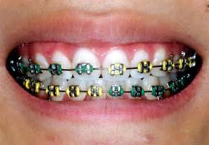 braces colors white braces white braces braces colors braces cheap