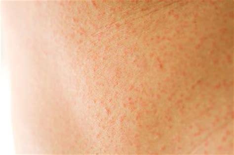 abdomen rash pictures photos