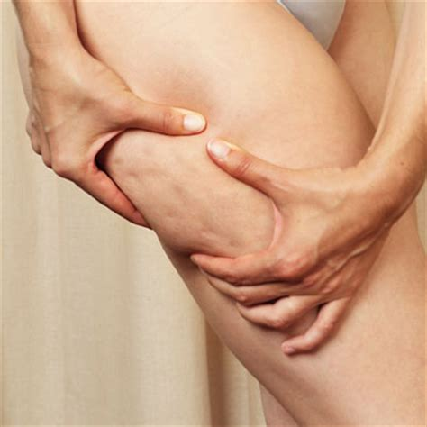 This Cellulite Works by Reduce Cellulite With Velashape Treatments