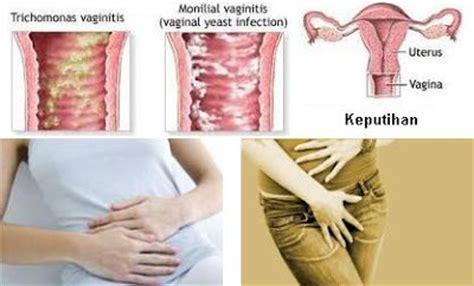 Celana Ketat Penyebab Keputihan ciri ciri keputihan pada wanita