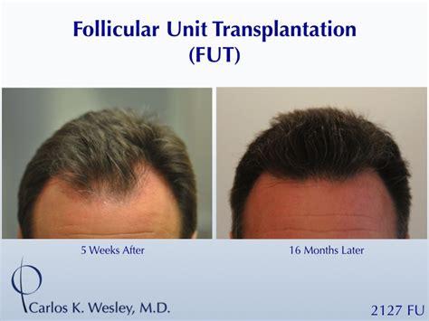 Hair Transplant Shedding by Hair Loss Hair Transplant And Hair Restoration Advice