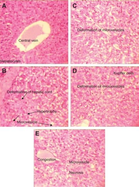 sections of liver h e stained liver sections in subchronic toxicity open i
