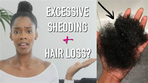 Causes Of Excessive Hair Shedding by Hiding Hair Battle With Hair Loss Excessive