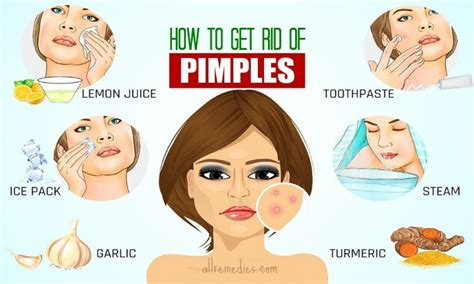 20 tips how to get rid of pimples fast and naturally