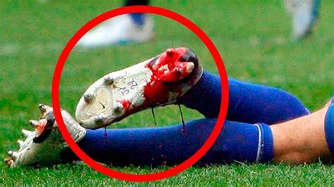 las imagenes mas emotivas del futbol las peores lesiones del mundo del f 218 tbol youtube