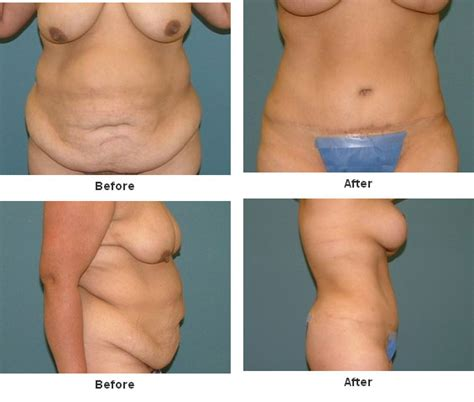 Breast Lift breast lift before and after images