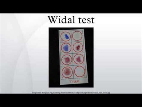 Rotator Widal widal test