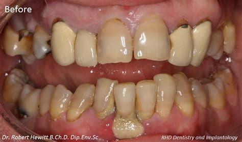 complete oral rehabilitation case  rh dental