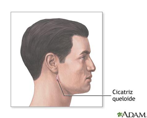 cicatriz spanish edition b016ok7kie cicatriz queloide medlineplus enciclopedia m 233 dica illustraci 243 n