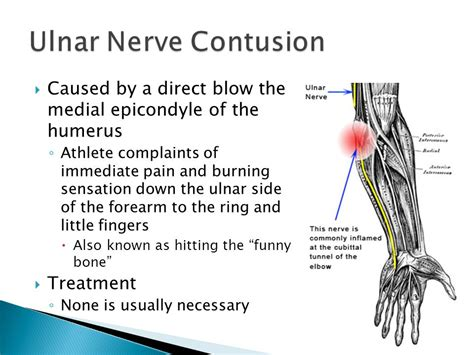 hitting nerve in elbow the elbow wrist and hand ppt video online download