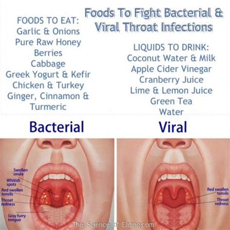 best 25 treating strep throat ideas on strep