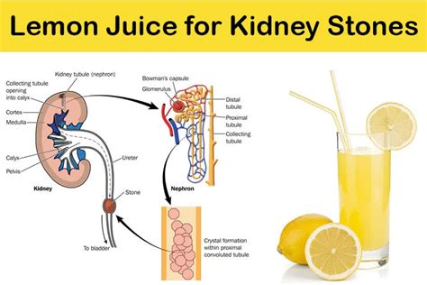 how to use lemon juice for kidney stones treatment
