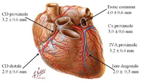 sillon interventriculaire arm coronaire irm cardiaque par neteditions