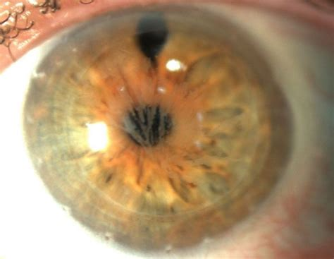 corneal dystrophy dicion 225 de oftalmologia praxis zeitz franko zeitz d 252 sseldorf fach 228 rzte f 252 r