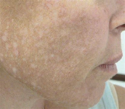 hypopigmentation after laser hair removal om hair