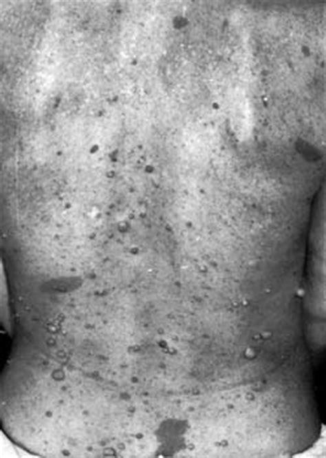 Nerwiakowłókniakowatość typu I (choroba von