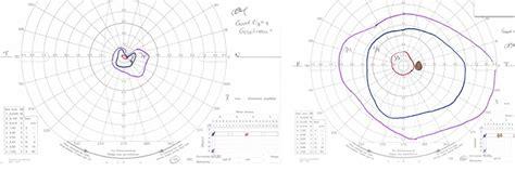 cloverleaf pattern visual field how to interpret visual fields practical neurology