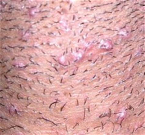 does witch hazel help ingrown hairs ingrown hair treatment vribbit
