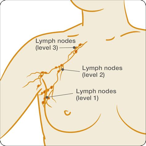 lymph nodes in breast diagram treatments surgery to the lymph nodes