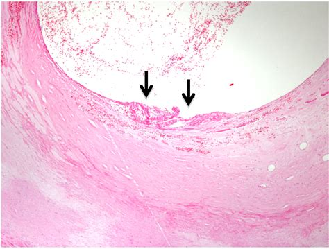 mural wall thrombus pathophysiology of atherothrombosis thrombus growth vascular thrombogenicity and plaque