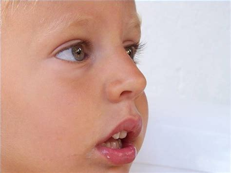 signs of jaw bone disease ehow ehow how to how to treat hand foot and mouth disease ehow