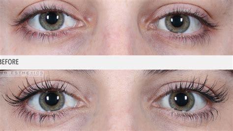 Etude Eyelash Serum do eyelashes grow longer belashed