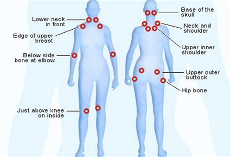 fibromyalgia tender spots diagram fibromyalgia symptoms tender points search engine