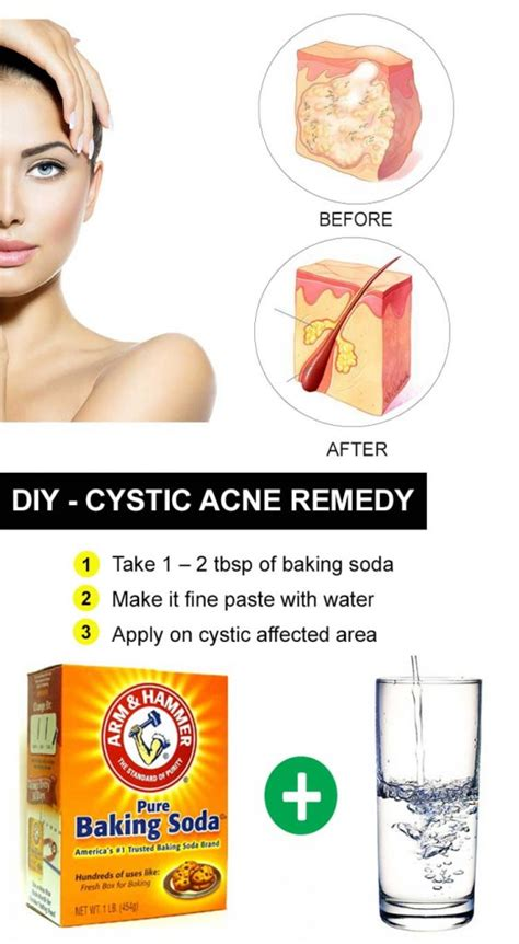 how to get rid of cystic acne 25 ways you should try