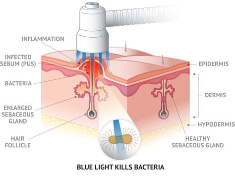 what does light therapy do for your skin skin care by jewls