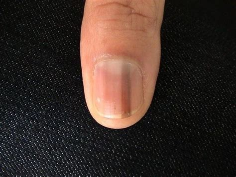 dark line on fingernail dark line down thumb nail best nail 2017