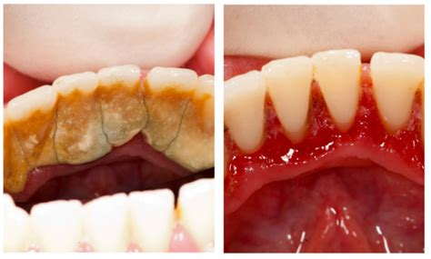 how to remove plaque from s teeth image gallery tartar
