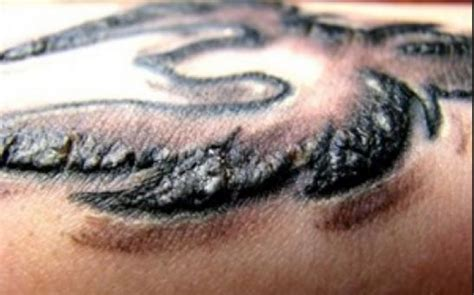 tattoo healing and scabbing what to do when you get a huge scab on fresh tattoos dr