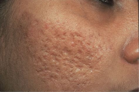 tuberous acne cured with homeopathy the homeopathic college