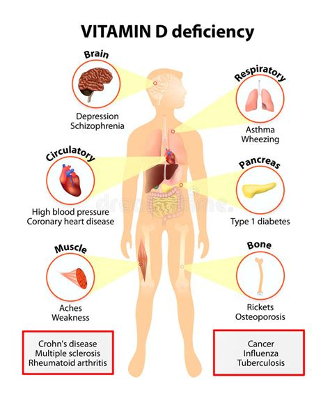 vitamin d deficiency free 1 hour vitamin d lecture vitamin d deficiency symptoms and diseases stock vector