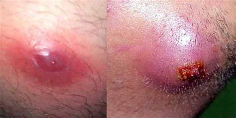 infected ingrown hair in groin area ingrown hair cyst removal won t go away under skin