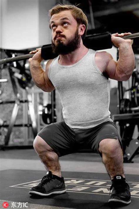 american man born  dwarfism struggles
