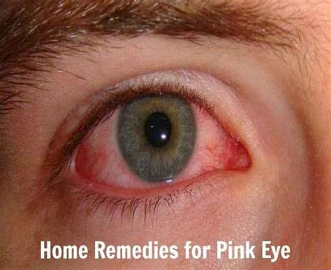 home remedies for pink eye health villas home rx