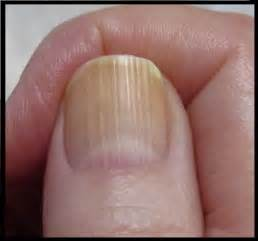 line on fingernail what causes vertical or horizontal ridges on nails