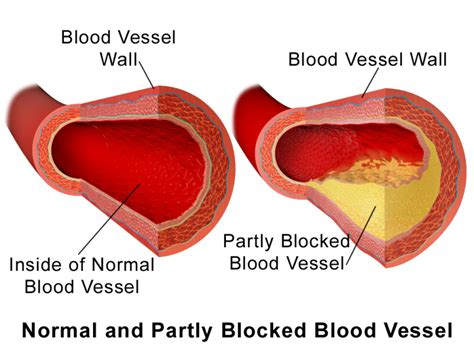 How To Detox Blood Vessels by Cleanse Your Blood Vessels And Regulate Your Cholesterol