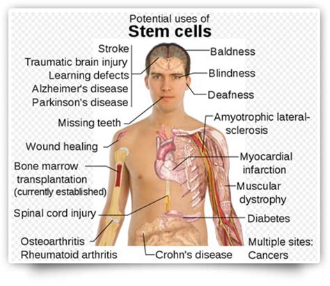 stem cell treatment now stem cell treatment now some alternative adult stem cell foundation