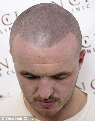 tattooed hair for bald men bald turn to hair tattoos to creates the illusion of