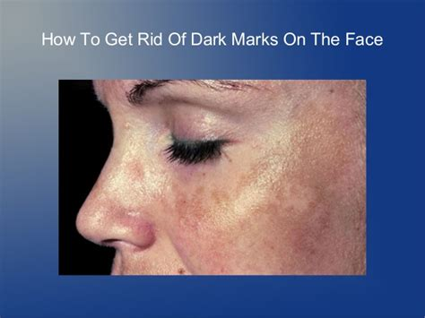With Marks by How To Get Rid Of Marks On The